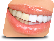 independence gum disease therapy